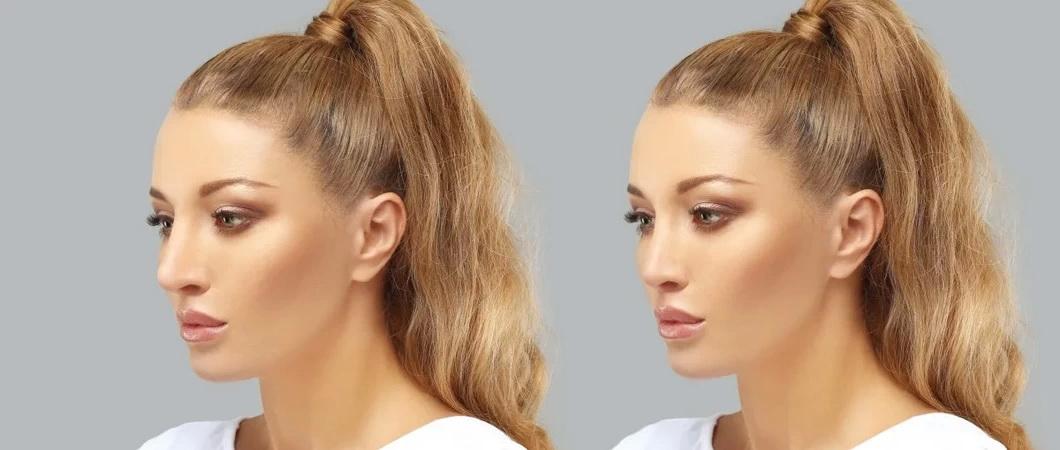 Коррекция носа ринопластика