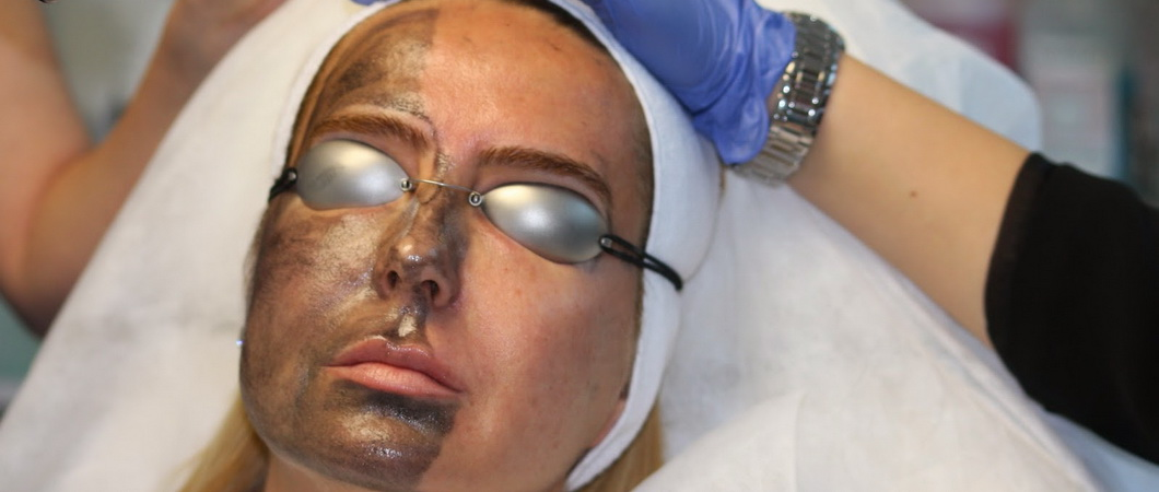 Карбоновый пилинг – лазерное омоложение лица