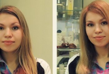 Процедура Boost up для волос