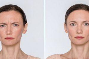 Красота без ботокса: советы косметологов